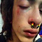 Milano – Storia di un'aggresione omofoba